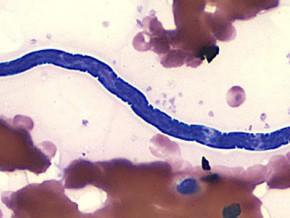 cameroun-des-scientifiques-mettent-au-point-loascope-un-appareil-mesurant-le-niveau-d-infection-de-l-onchocercose